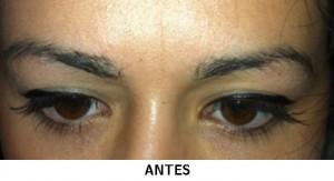micropigmentacion-cejas-estetica-oncologica-navitu-antes