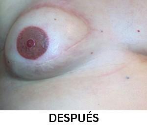 micropigmentacion-estetica-oncologica-navitu-despues-02